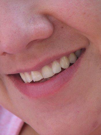 acne scar laser surgery picture / photo