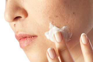 natural acne products picture / image